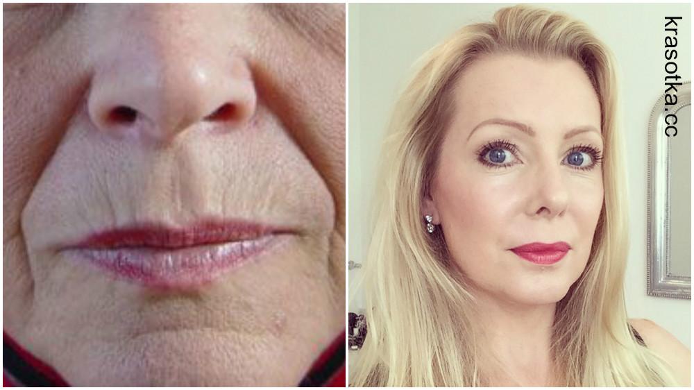 мае производителя кисетные морщины над губами как убрать фото вес