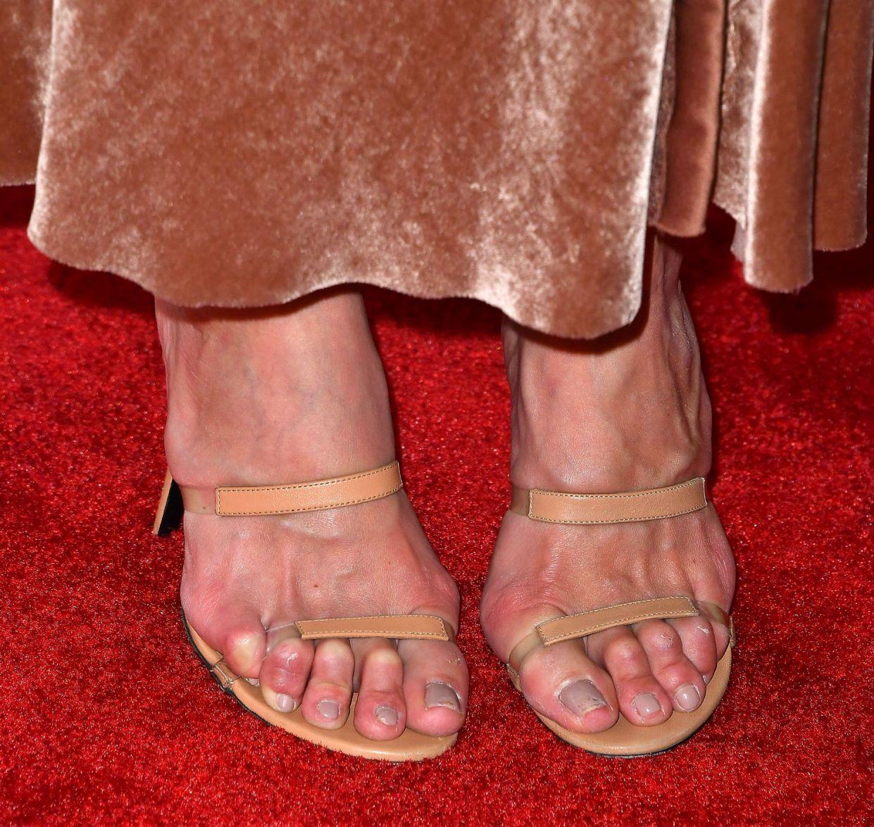 женские провалы при ношении обуви фото 5