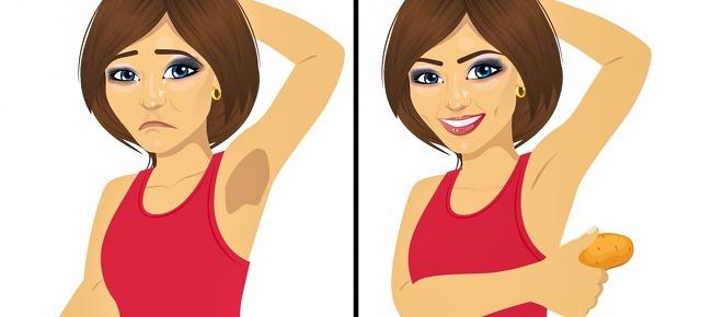 несовершенства кожи фото 3