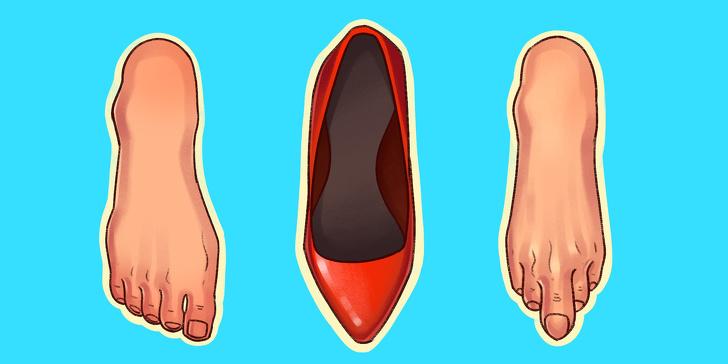 виды обуви, которые могут нанести вред фото 1