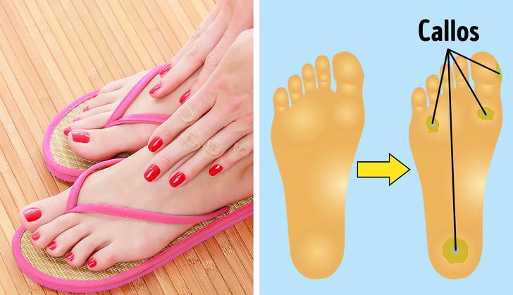 виды обуви, которые могут нанести вред фото 2