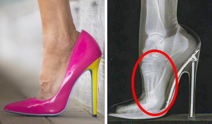 виды обуви, которые могут нанести вред фото 3