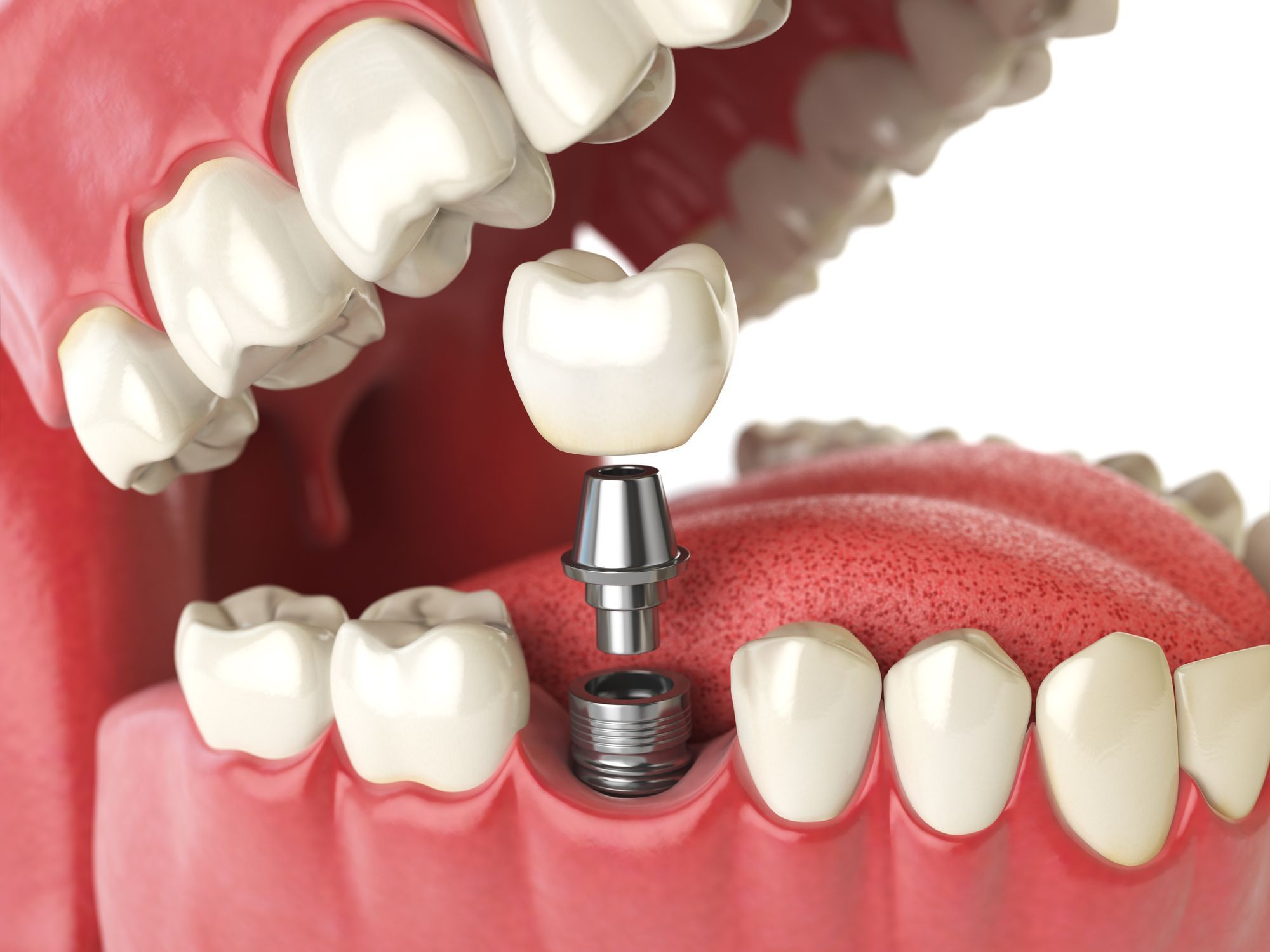 имплантация зубов фото 1