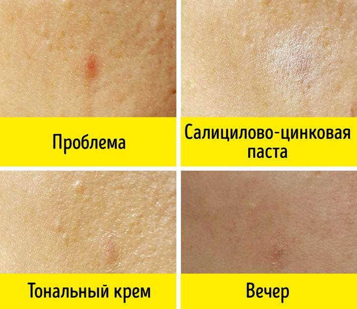 Аптечные средства, используемые в косметологии фото 3